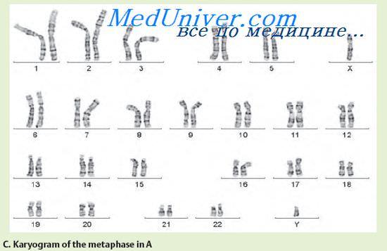 хромосомы при эндокринных заболеваниях