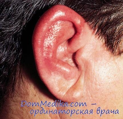 Термоноски насморк осложнения на уши коем случае нельзя