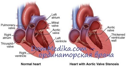 Диагностика клапанного стеноза устья аорты. Ангиокардиография при ...
