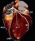 окклюзия коронарных артерий
