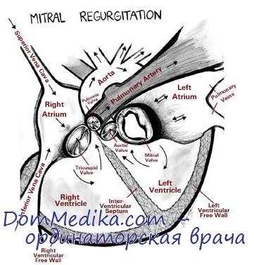 Митральная регургитация