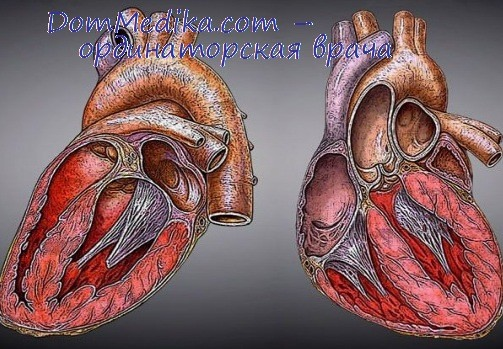 Гипоксия мозга при остановке сердца. Патогенез гипоксии мозга в ...