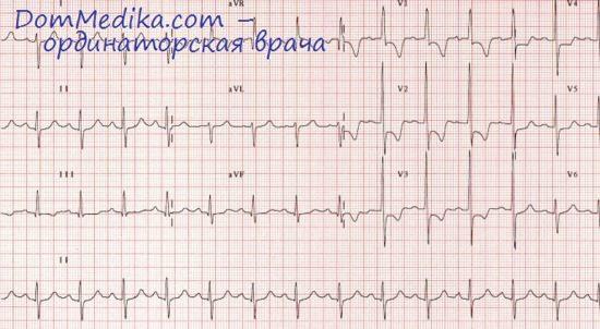 ЭКГ при гипертрофии желудочков. Желудочковый комплекс при ...