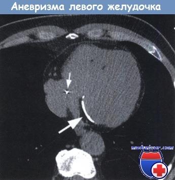 Эхокардиография при аневризме левого желудочка