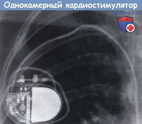 Однокамерный кардиостимулятор
