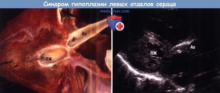 Синдром гипоплазии левых отделов сердца