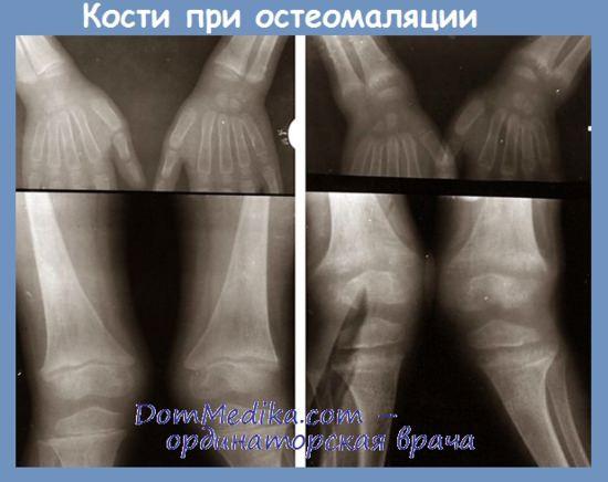Кости при остеомаляции