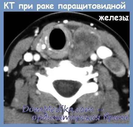 КТ при раке паращитовидной железы