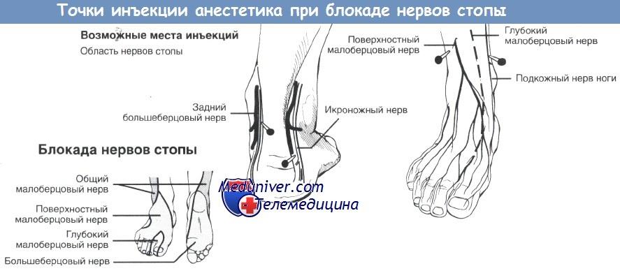 Анатомия нервов стопы для блокады
