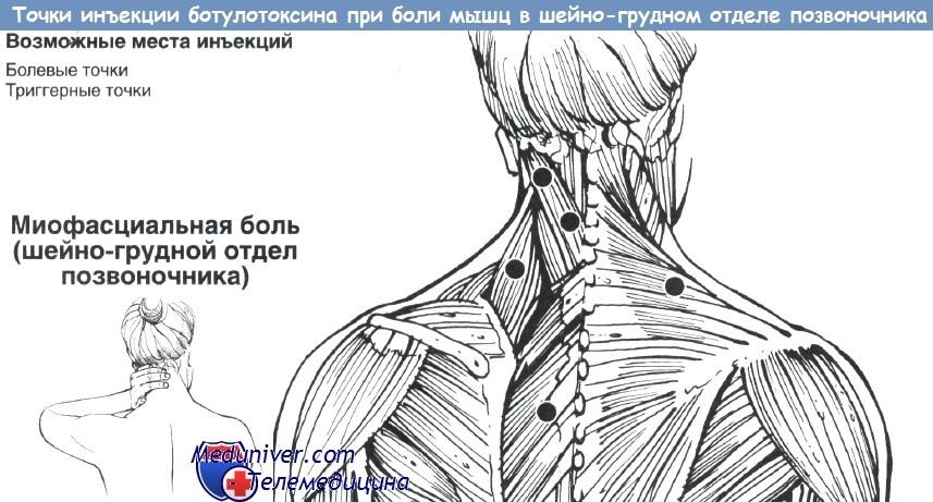 Сильнейшая боль грудного отдела позвоночника
