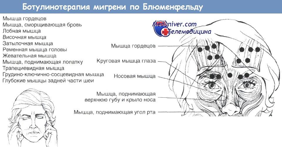 Ботулинотерапия мигрени по Блюменфельду