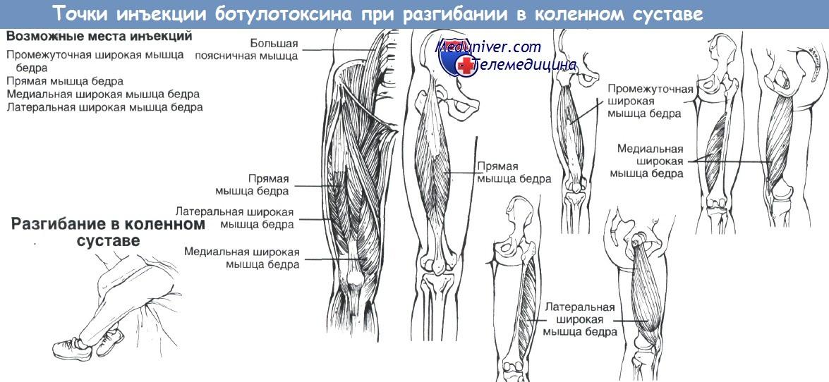 почему болят суставы кистей рук и коленные суставы