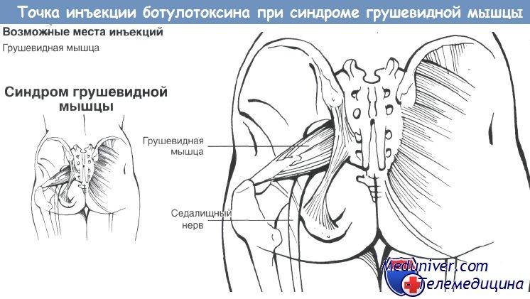 Грушевидная мышца лечение в домашних условиях