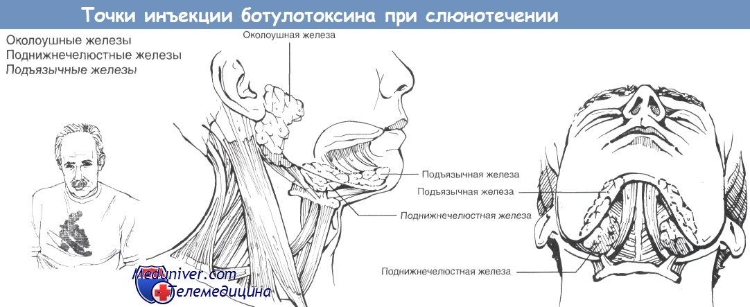 Препарат для лечения герпеса в инъекциях