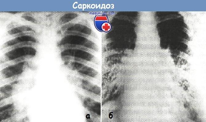 Рентгенограммы легких при саркоидозе