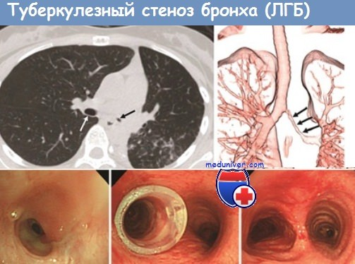туберкулез бронха