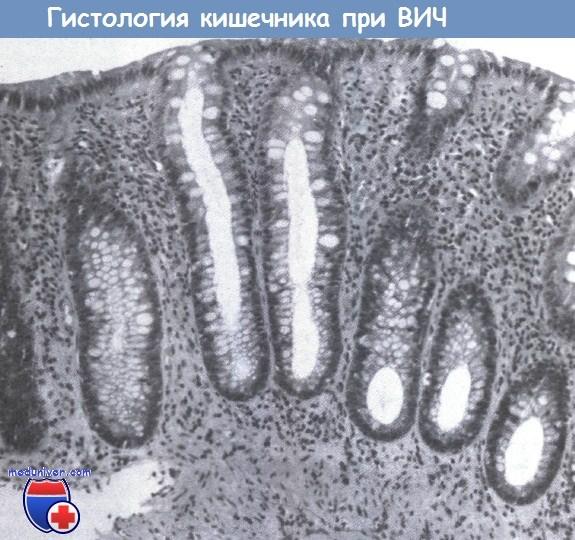 Гистология кишечника при ВИЧ