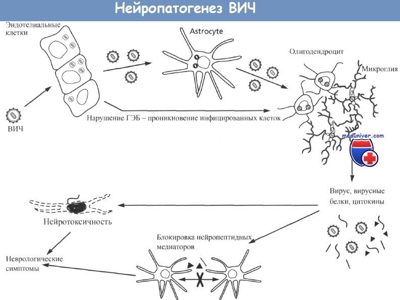 Нейропатогенез ВИЧ