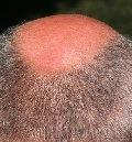 физиология волос