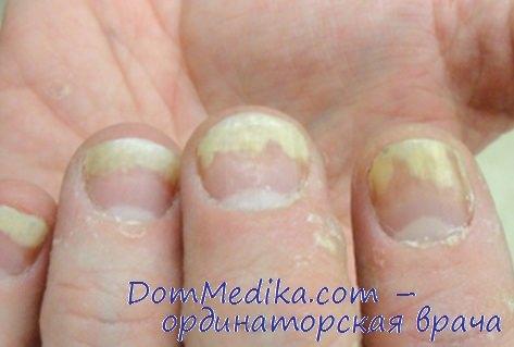 ногти пациента