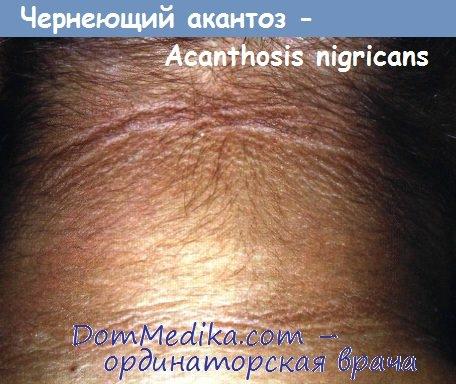 Черный акантоз (акантокератодермия)