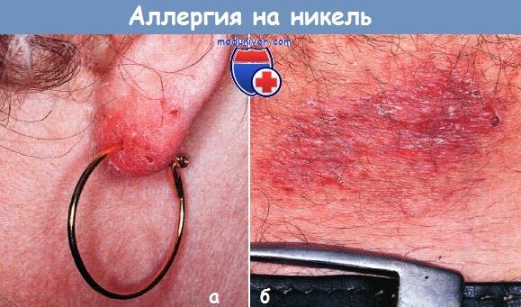 аллергия на никель симптомы фото