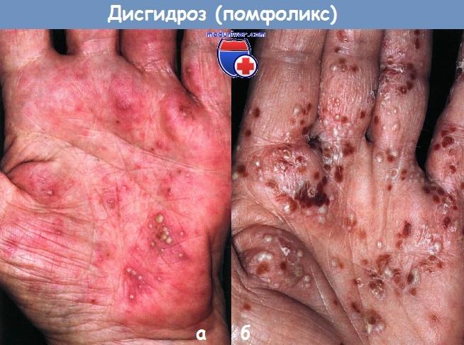 Дисгидроз (помфоликс) кистей рук и стоп