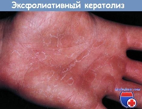Эксфолиативный кератолиз - рецидивирующее очаговое шелушение ладоней