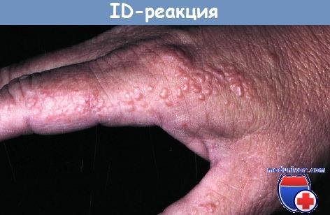 аллергия на творог агуша