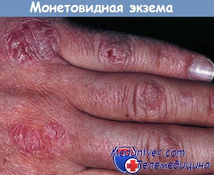Монетовидная (нуммулярная) экзема кисти руки
