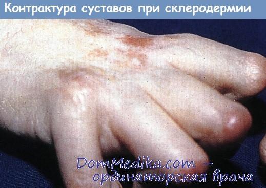 силденафил склеродермия