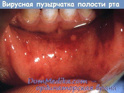 пузырчатка в полости рта