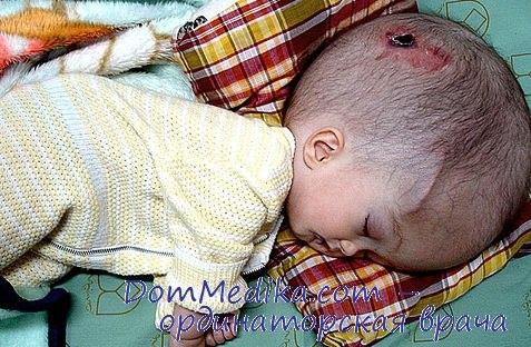 Врожденный уродства у детей фото