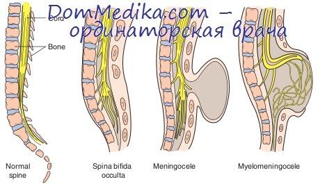 спинномозговые грыжи - spina bifida