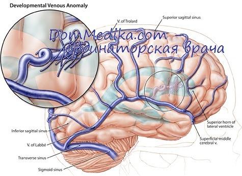 Венозные ангиомы у детей: причины, диагностика, лечение