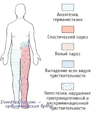 Половинное поражение спинного мозга - синдром Броун-Секара