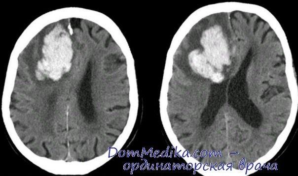 Виды инфарктов головного мозга. Причины ишемии мозга