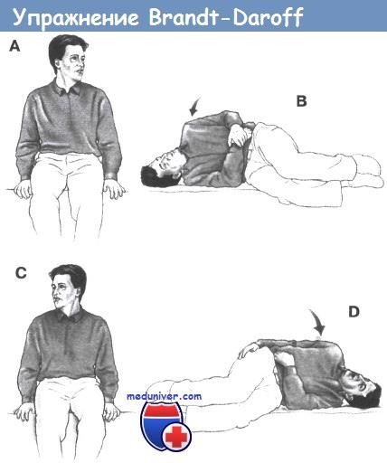 Как лечить головокружение физическими упражнениями