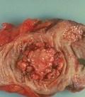 опухоли кишечника