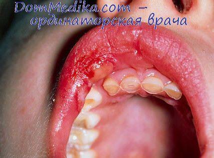 Клиника контактного дерматита. Хроническая идиопатическая крапивница
