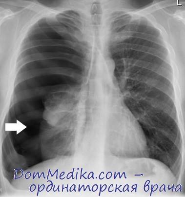 Пневмоторакс справа у пациента