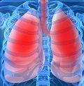 тактика при дыхательной недостаточности