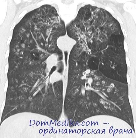 Диагностика амилоидоза легких. Лечение