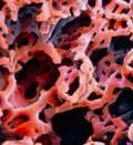 ишемия тканей