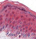 гипоксия тканей