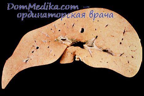 Что такое гепатит? Вирусные и невирусные гепатиты. Откуда ...