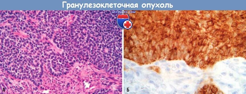 тогда иммуногистохимия при раке яичника Norveg производится