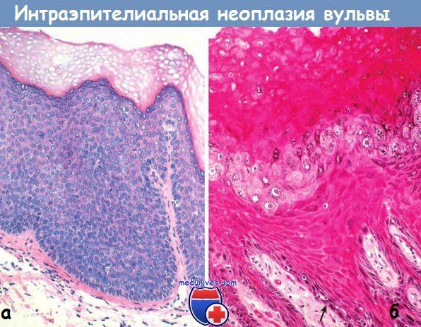 Интраэпителиальная неоплазия вульвы