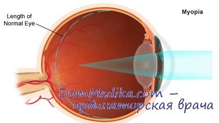 Купить очки для зрения в вао