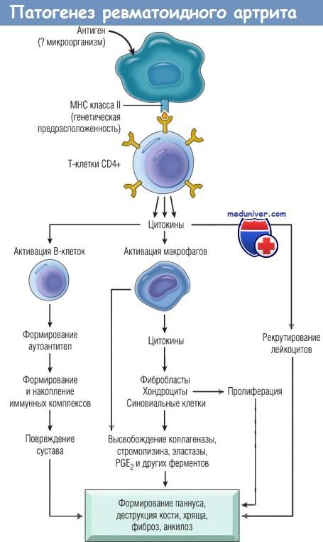 Патогенез ревматоидного артрита